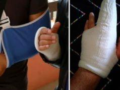 Un esagitato a Chioggia ferisce 6 agenti.